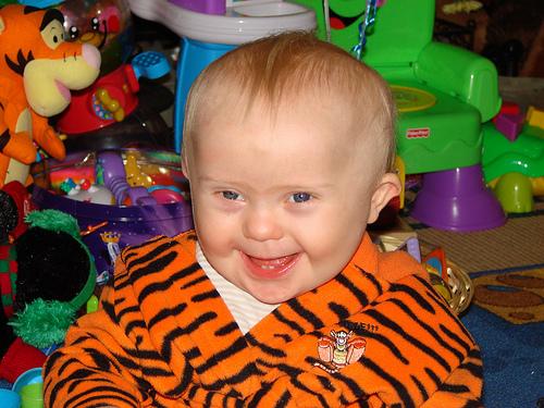 O bebê com Síndrome de Down e seus dentinhos