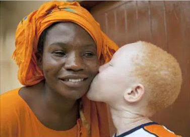 Seu bebê é albino?