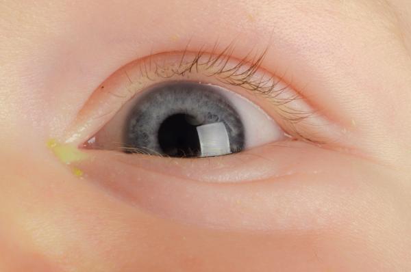 Conjuntivite neonatal: saiba o que é, como prevenir e tratar