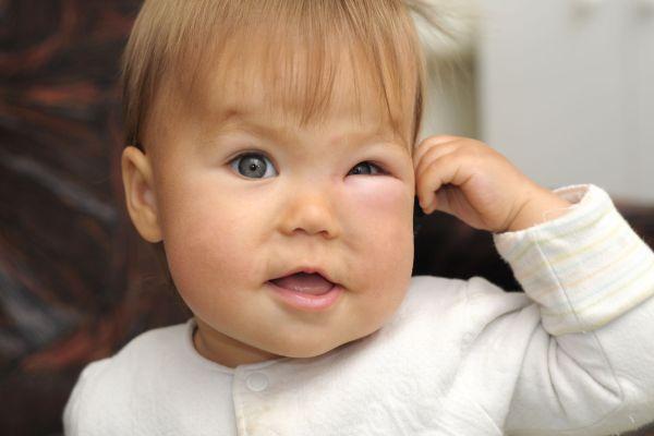 Celulite nos olhos de bebês e crianças (quadro grave e pouco conhecido!)
