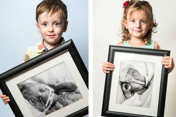 Fotos emocionantes de bebês prematuros que sobreviveram (o antes e o depois!)