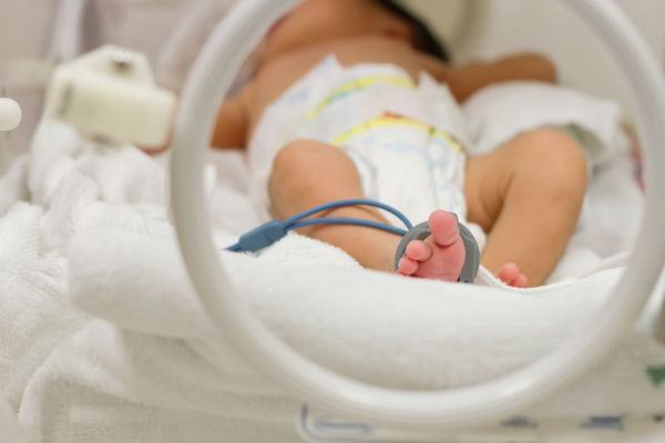 Bebê prematuro: por que é importante que ele seja acompanhado por uma equipe de profissionais