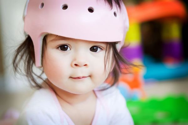 Assimetria craniana: o relato de uma mãe que viu o achatamento da cabeça de seu bebê
