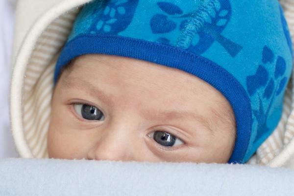 """Estrabismo em bebês e crianças: o que você precisa saber sobre o """"olho vesgo"""""""