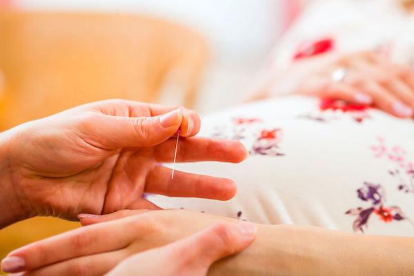 Como a acupuntura pode contribuir com o trabalho de parto (você vai se surpreender!)