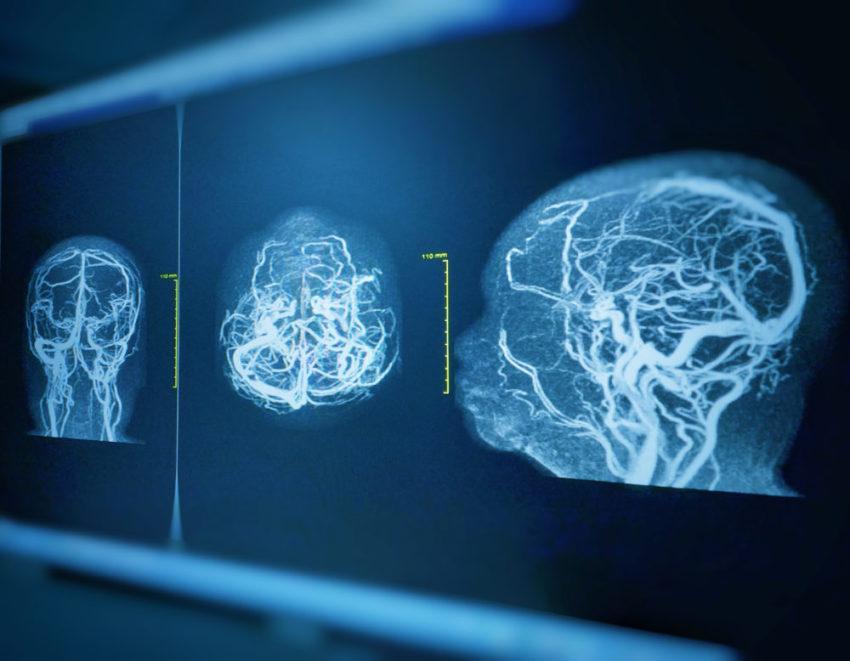 Música pode ajudar no desenvolvimento do cérebro prematuro