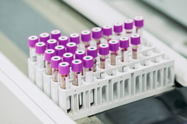 amostras de sangue para exame